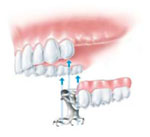 dental implant, removable set