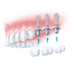 dental implant, insertion of three separate implants