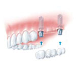 dental implant, two fixed implants and bridge