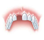dental implant - when a fore-tooth is missing