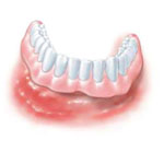 dental implant, removable denture can easily cause gingivitis