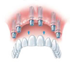 dental implant, a bridge affixed to implants